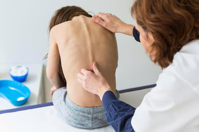 Risk Factors in the Progression of Scoliosis - El Paso Chiropractor
