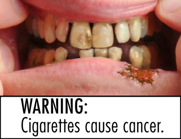 Image result for smoking causes cancer blogspot.com