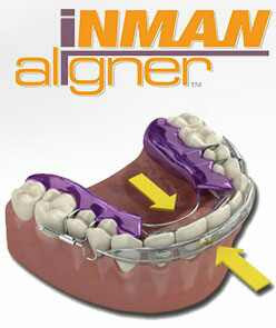 Top 5 Benefits to Straightening Teeth with Removable Aligners