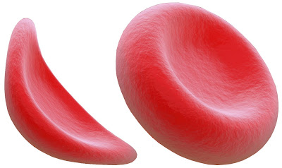 Endari Cost, Side effects, Dosage, Uses for sickle cell disease