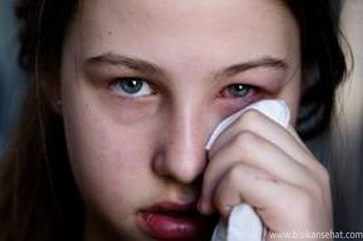 Tips Cara Menghilangkan Mata Bengkak Akibat Nangis