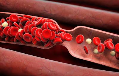 The importance of breakfast in preventing blood clots أهمية وجبة الإفطار في منع الجلطات الدموية
