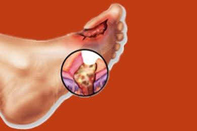 Penyakit Osteomielitis, Penyebab, Gejala dan Pengobatan Infeksi Tulang