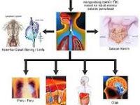 ramuan untuk penyakit tbc