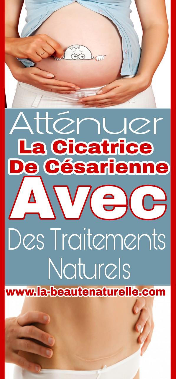 Atténuer la cicatrice de césarienne avec des traitements naturels