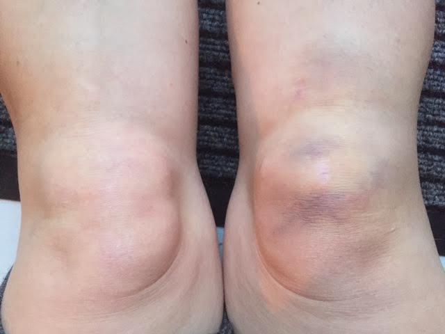 blodpropp i knät