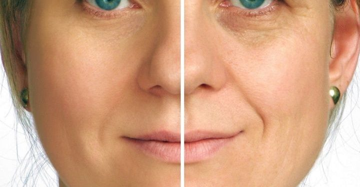 Mask Able To Smooth The Face And Remove Wrinkles Naturally and Quickly