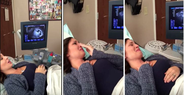 A pregnant mother does not believe her eyes when she sees the ultrasound