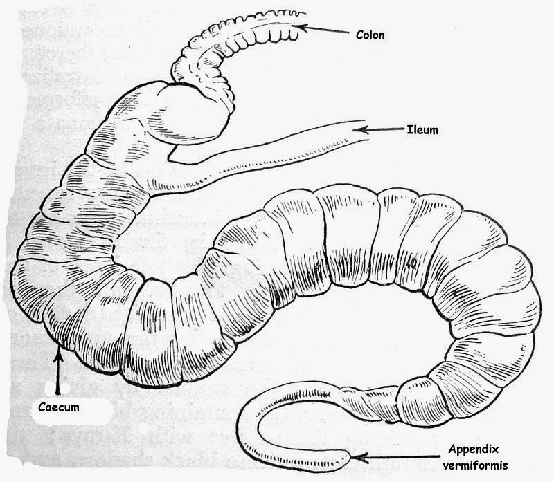 bahaya usus buntu tidak dioperasi