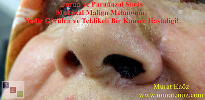 malign melanoma, sinonasal malign melanoma, intranasal malign melanoma, paranasal sinus cancer, sinonasal mucosal malign melanoma