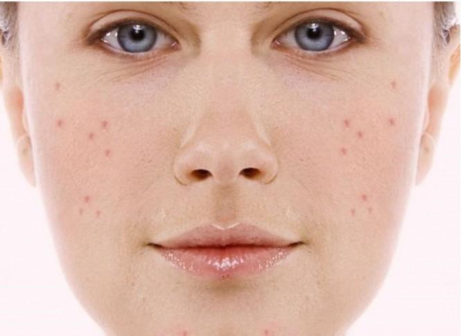 La máscara para las personas para la piel problemática