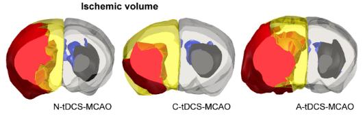 図:tdcs電極と脳梗塞体積