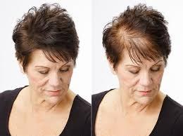 زراعة الشعر في تركيا,زراعة الشعر,تركيا,زراعة الشعر في اسطنبول,تكلفة زراعة الشعر في تركيا,عملية زراعة الشعر,زراعة الشعر تركيا,اسطنبول,تكلفة زراعة الشعر,زراعة شعر في تركيا,عمليات زراعة الشعر,تجارب زراعة الشعر في تركيا