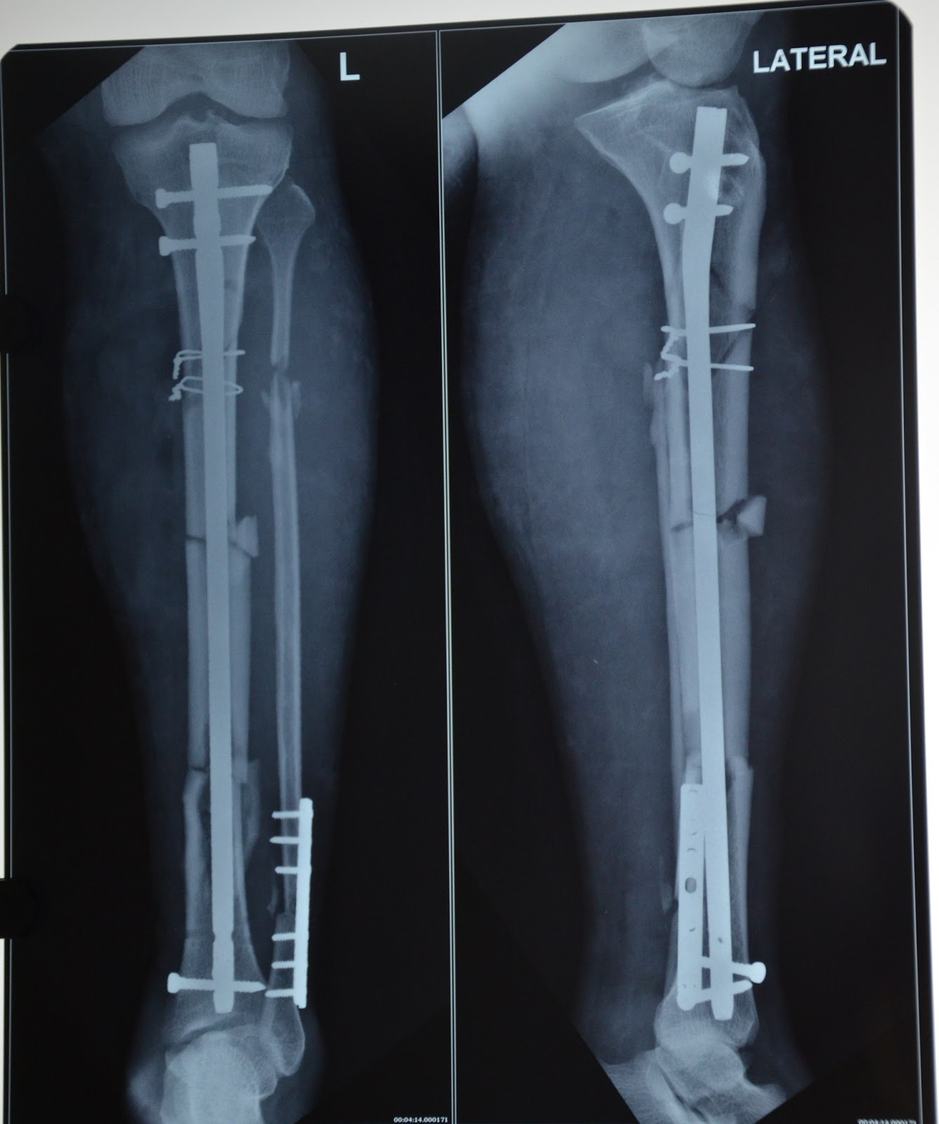 Loss Of Use Coverage >> LEG INJURY - OPEN FRACTURE TIBIA - GRADE III B ...