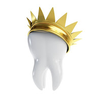 preparation couronne dentaire
