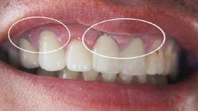 giá răng sứ rẻ nhất là bao nhiêu -6