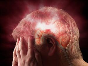 Penyebab dan Pencegahan Terhadap Penyakit Stroke