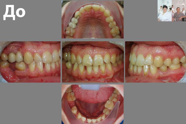 5 фото зубов пациента до лечения