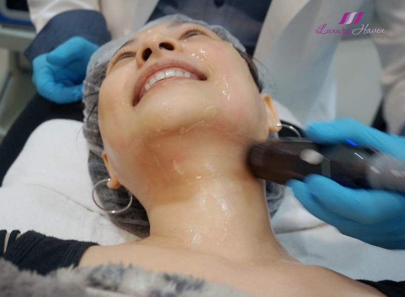 eha clinic hifu plus facelift review long lasting