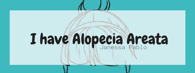 I have Alopecia Areata | Life 2018