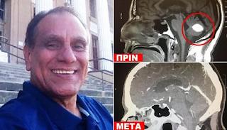 Άντρας με καρκίνο «νίκησε» τον όγκο στο κεφάλι με προσευχή στο Θεό και οι γιατροί «σκίζουν τα πτυχία τους»