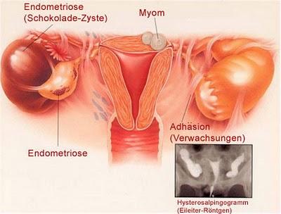 Hasil gambar untuk Gangguan Reproduksi karena kondom