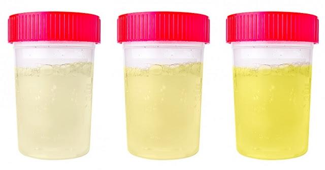 لون البول اصفر شاحب او اصفر مائل الى شفاف او اصفر داكن