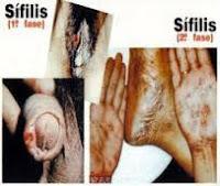 Obat Sipilis Terbukti Menyembuhkan