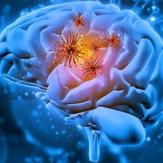 Stimulasi elektrik  untuk mengobati Depresi - Trauma