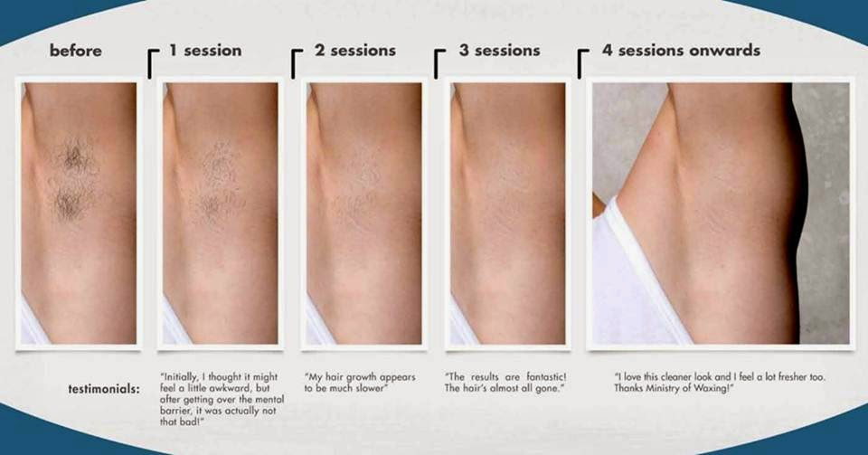 Feature Strip Ice Advanced Semi Permanent Hair Removal