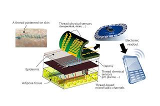 'Smart' Thread Collects Diagnostic Data When Sutured Into Tissue
