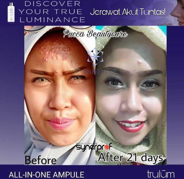 Jual Serum Penghilang Jerawat Trulum Skincare Dow Tolikara