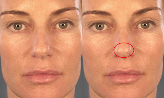Bulbous nose Pictures, Definition, rhinoplasty, Contouring, Reduction