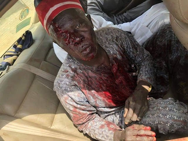 Thugs Attack Kwankwaso's Convoy In Kano, Supporters Killed. Photos