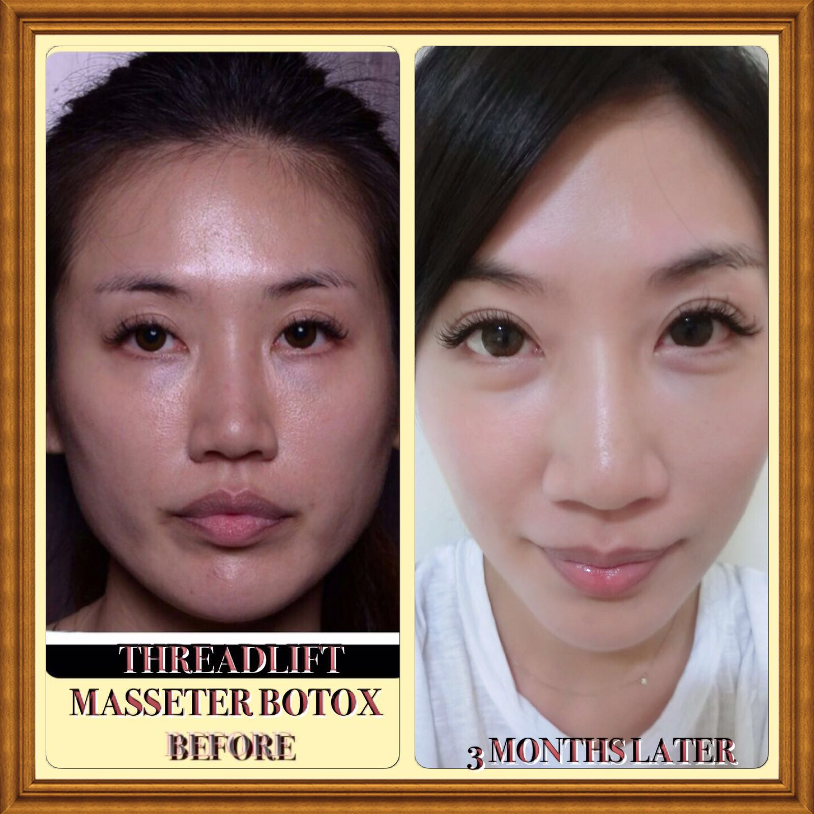Live A Life You Will Remember : My Threadlift Review with Dr