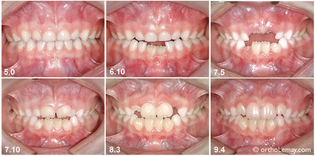 Causes les plus fréquentes de déformation des dents