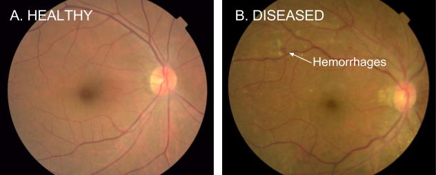 Google AI Blog: Deep Learning for Detection of Diabetic Eye Disease