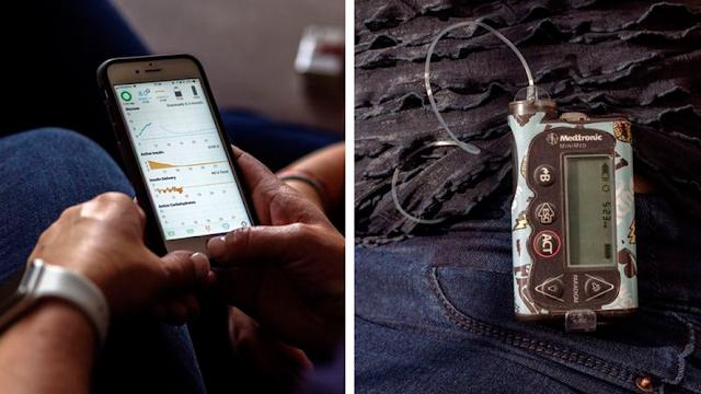 El dispositivo que le cambió la vida a las personas con diabetes
