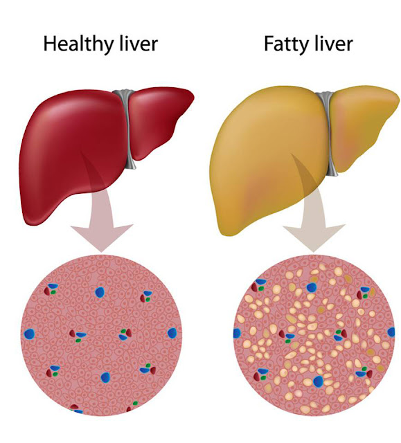 Foods You Should Eat Every Day | Symptoms, Treatment and Foods that Keep Your Liver Healthy