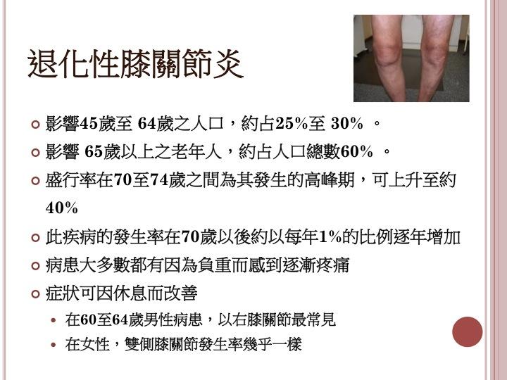 臺北醫學大學附設醫院 骨科部 運動醫學科主任 吳家麟 醫師: 退化性膝關節炎治療的新觀念