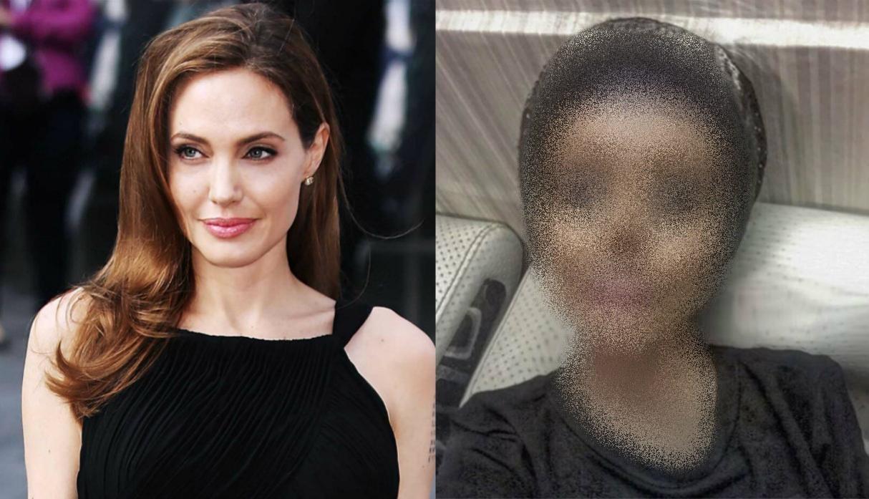 Jovem faz mais de 50 cirurgias para ficar igual Angelina Jolie e resultado vai bugar sua mente
