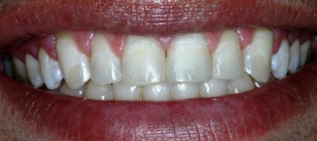 Odontologia Tm Caso Cl 237 Nico Clareamento E Resina Composta