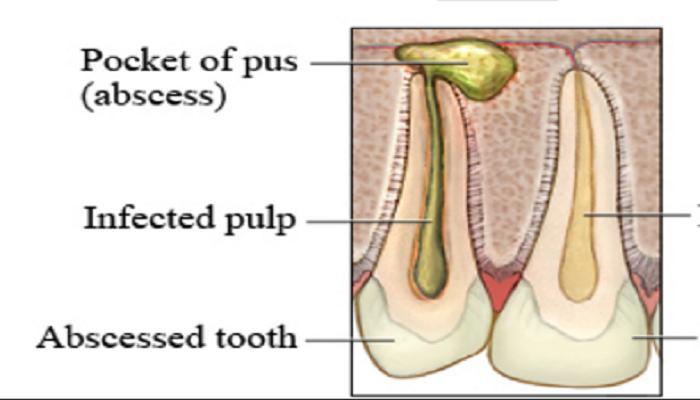 zahnabszess schmerz hausmittel gegen abszesse zahnschmerzen nach f llung. Black Bedroom Furniture Sets. Home Design Ideas