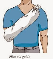 Fractured collar bone--First Aid Guide
