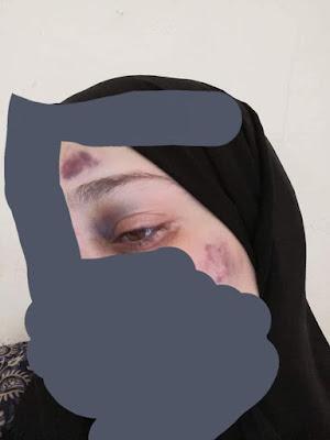 كسر بالانف, امام مسجد, يعذب زوجته بطريقة وحشية, التشهير به,