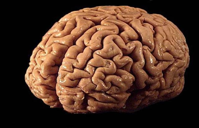 cisticercosis-en-el-cerebro