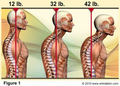 gravity stress and back pain affects degenerative posture