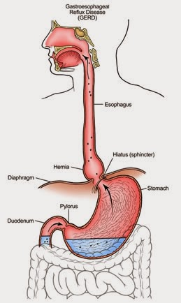 esophageal reflux