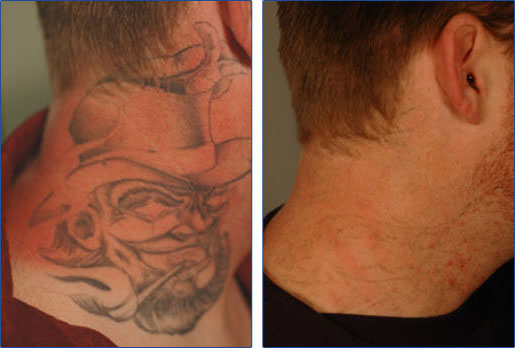 af925d83a Laser Tattoo Removal in Vascular Regions Tattoo Removal