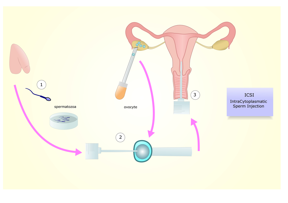 IVF-Fertility-Treatment
